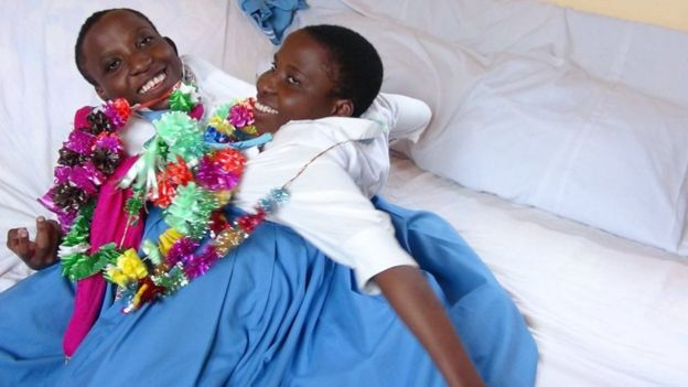 Tanzanian conjoined twins Maria and Consolata die aged 22